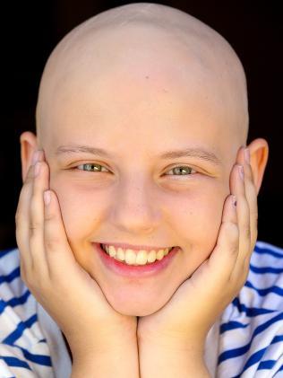 Stella shares alopecia story