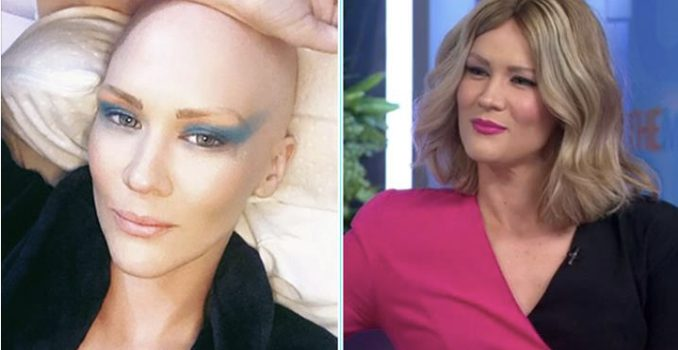Retrosweat's Shannon Dooley reveals her battle with Alopecia on The Morning Show